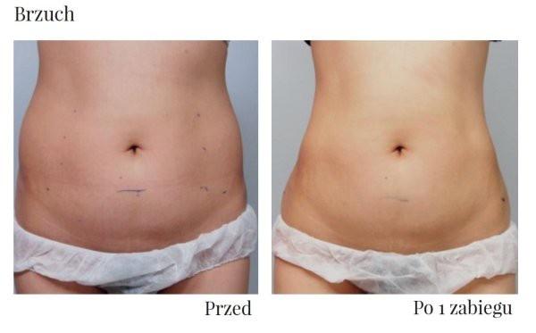 efekty HIFU na brzuchu